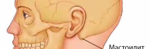 Что такое заболевание сифилисом