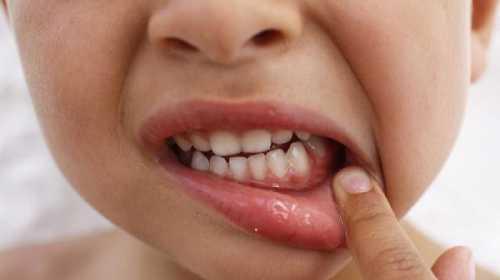 Симптомы лечение и профилактика кори