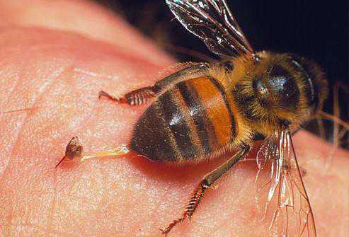 Укусила пчела: что делать